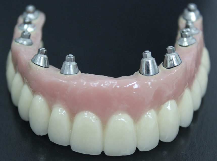 Протезирование верхней челюсти на 10 имплантах