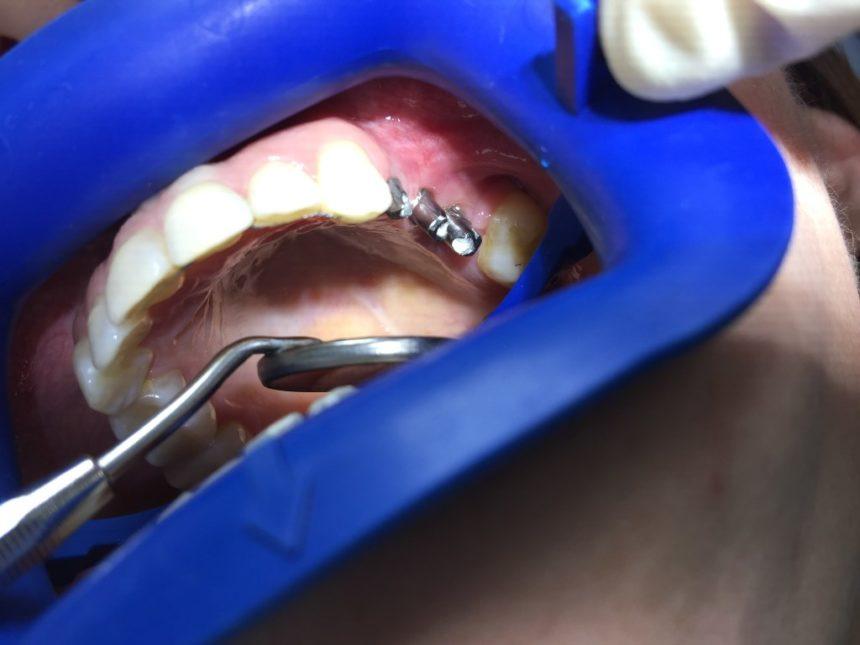 Имплантация и протезирование на имплантах