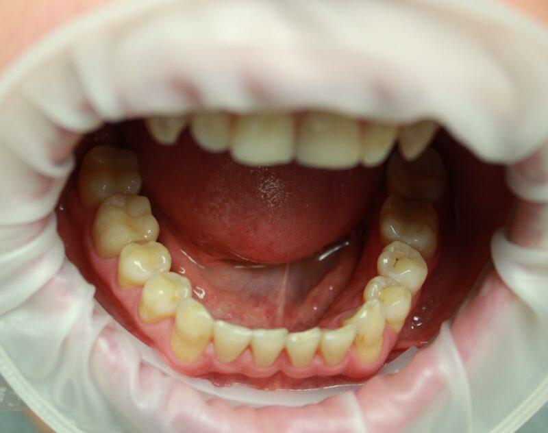 пластиковые виниры на зубы отзывы